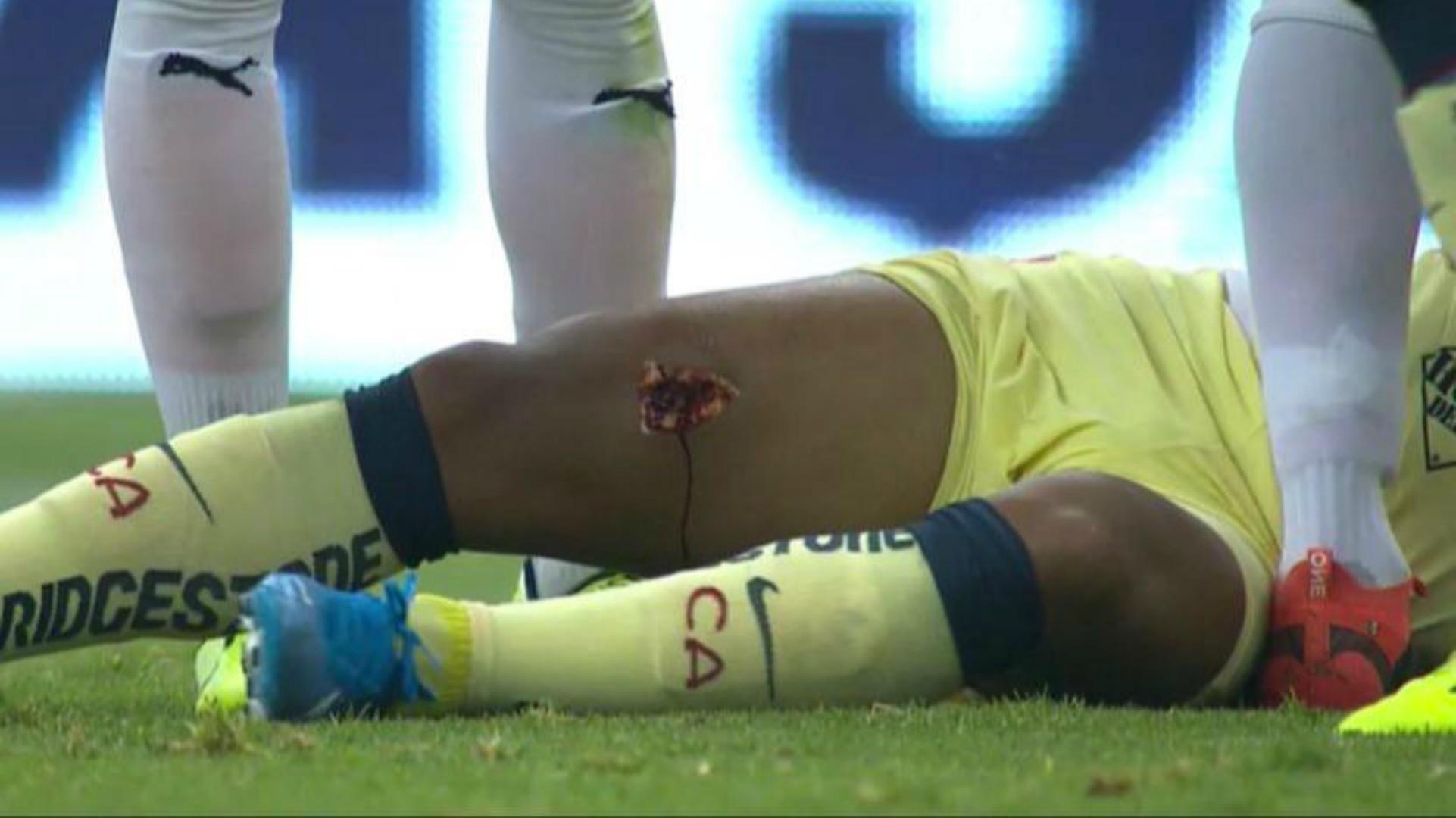 Giovani Dos Santos sufre escalofriante lesión en el Clásico Nacional