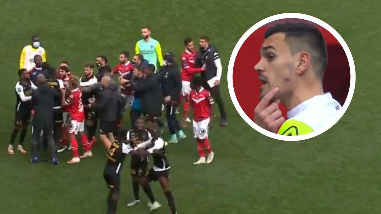 Valenciennes vs Sochaux, Jerome Prior face bite