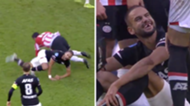 Pantelis Hatzidiakos AZ Alkmaar loses his teeth